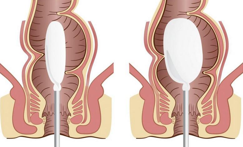 Manometria anorettale: a cosa serve l'esame e come si svolge